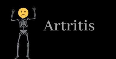 cómo saber si tengo artritis